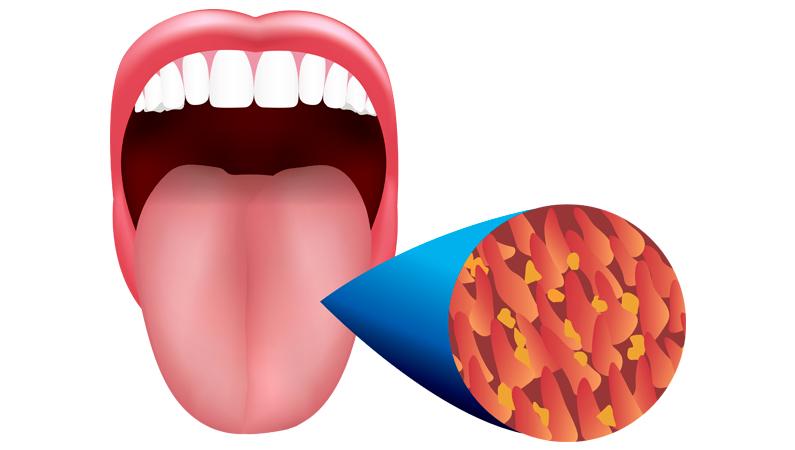 Bakterier på tungen